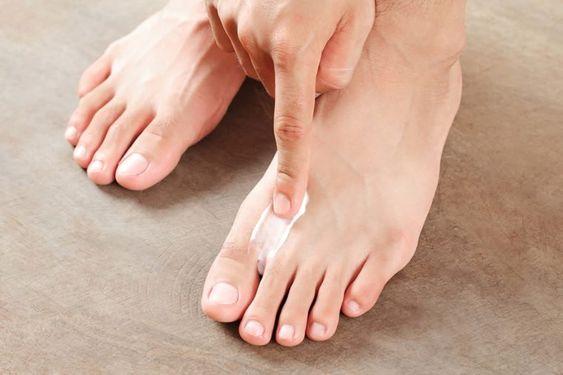 Μύκητες ποδιών, χέρι βάζει κρέμα στα πόδια