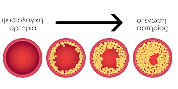 χοληστερίνη ή όψη μιας φυσιολογικής αρτηρίας και όψεις με στάδια με πρόβλημα